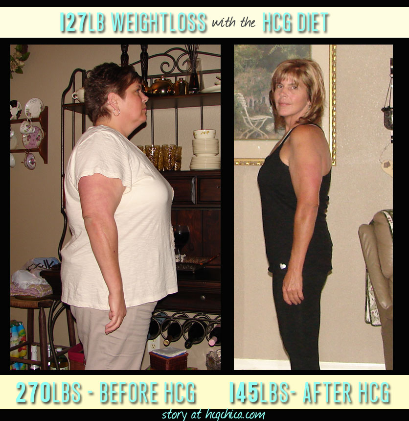 hCG Diet Results - 127lb Weight Loss - health conditions - maintaining 1 year - Episode 6