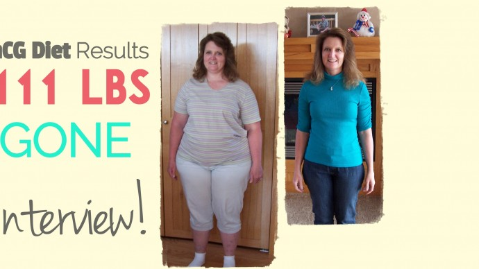 hCG Diet Interviews – Episode 10 – 111lbs Lost After No Other Diets Worked